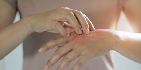 neurodermitis-symptome-ausschlag-hand
